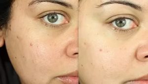 Пилинг лица до и после