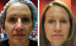 до и после фракционной мезотерапии