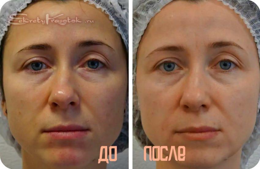 до и после миостимуляции лица