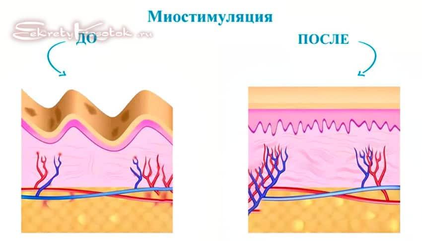 миостимуляция до и после