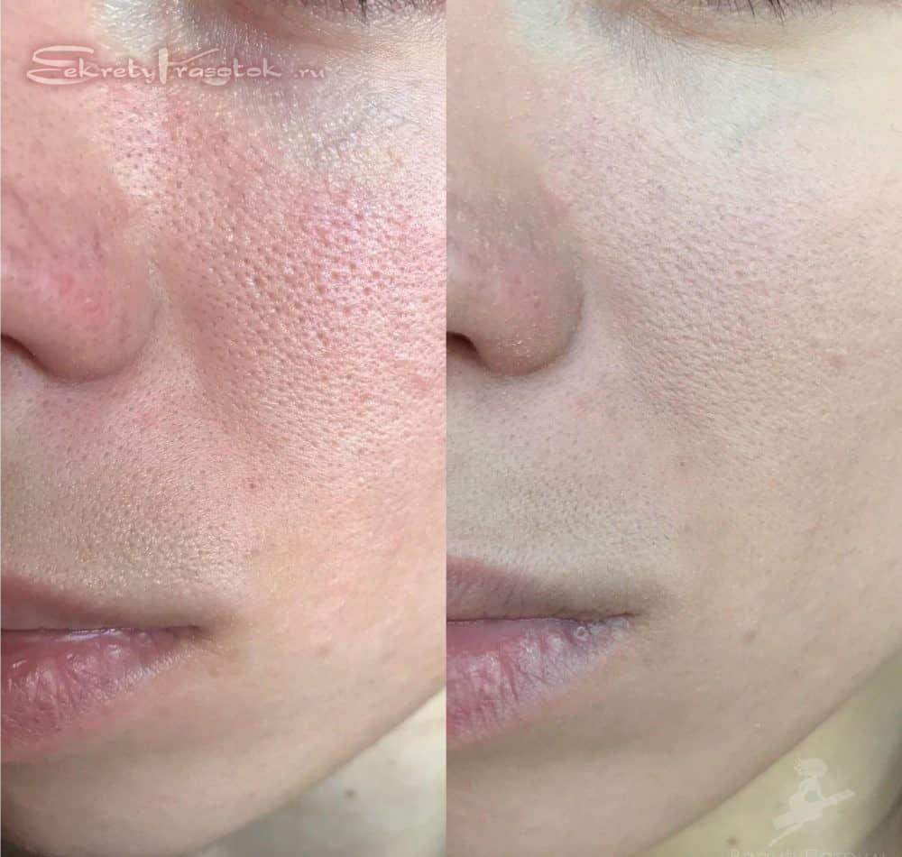 кожа до и после