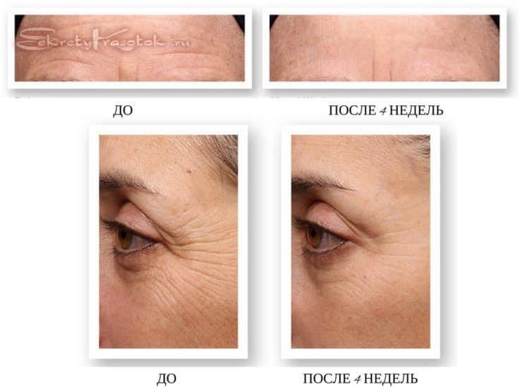 эффект от применения ретинола