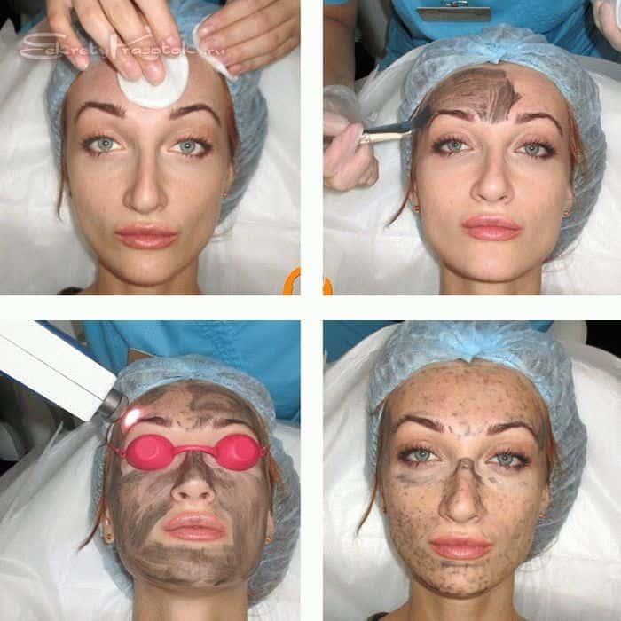 процедура карбонового пилинга лица поэтапно