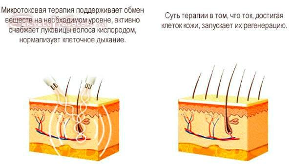 микротоки для тела