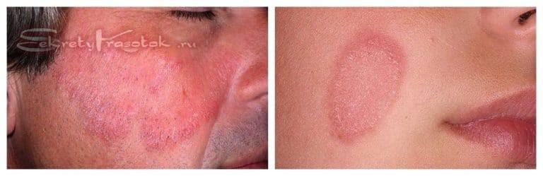 шелушение кожи на лице по причине грибка