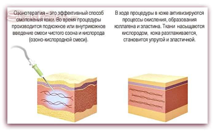 действие озонотерапии