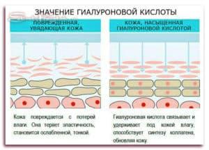 для чего гиалуроновая кислота