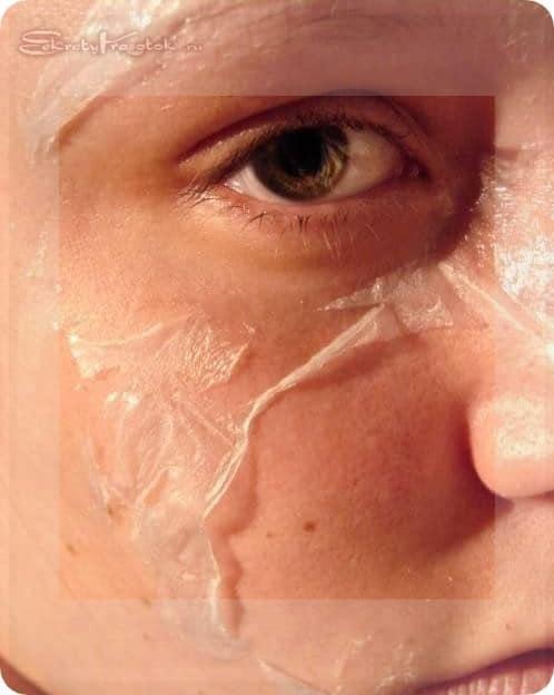 реакция кожи на салициловый пилинг