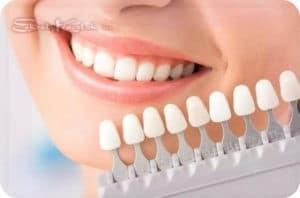 отбелить зубы у стоматолога